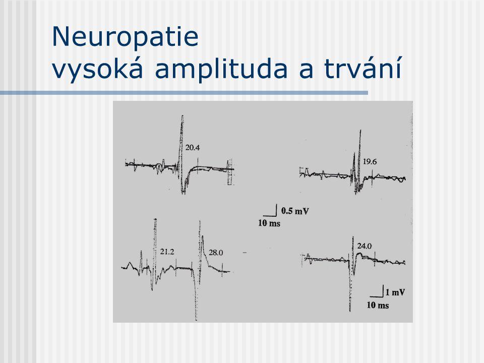 Neuropatie vysoká amplituda a trvání