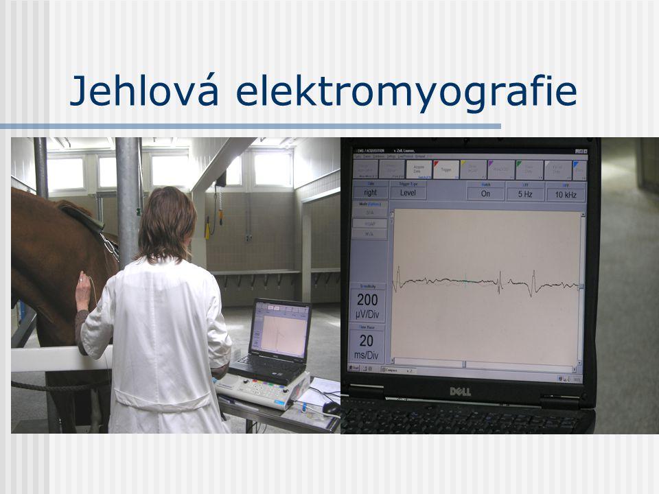 Jehlová elektromyografie