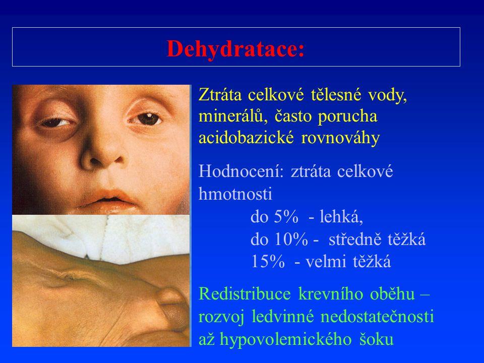 Dehydratace: Ztráta celkové tělesné vody, minerálů, často porucha acidobazické rovnováhy. Hodnocení: ztráta celkové hmotnosti.