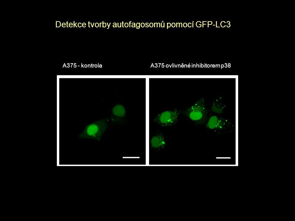 Detekce tvorby autofagosomů pomocí GFP-LC3
