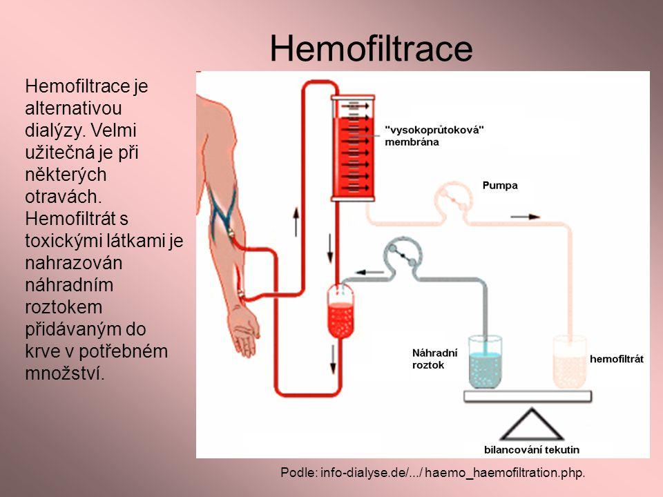 Hemofiltrace