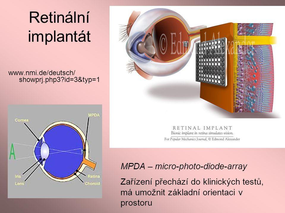 Retinální implantát MPDA – micro-photo-diode-array