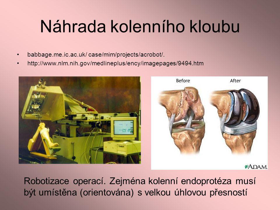 Náhrada kolenního kloubu