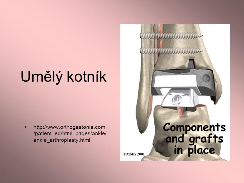 Umělý kotník http://www.orthogastonia.com/patient_ed/html_pages/ankle/ankle_arthroplasty.html