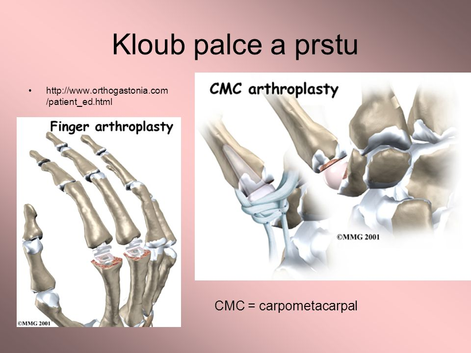 Kloub palce a prstu CMC = carpometacarpal