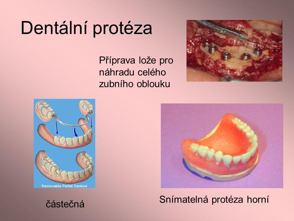 Dentální protéza Příprava lože pro náhradu celého zubního oblouku