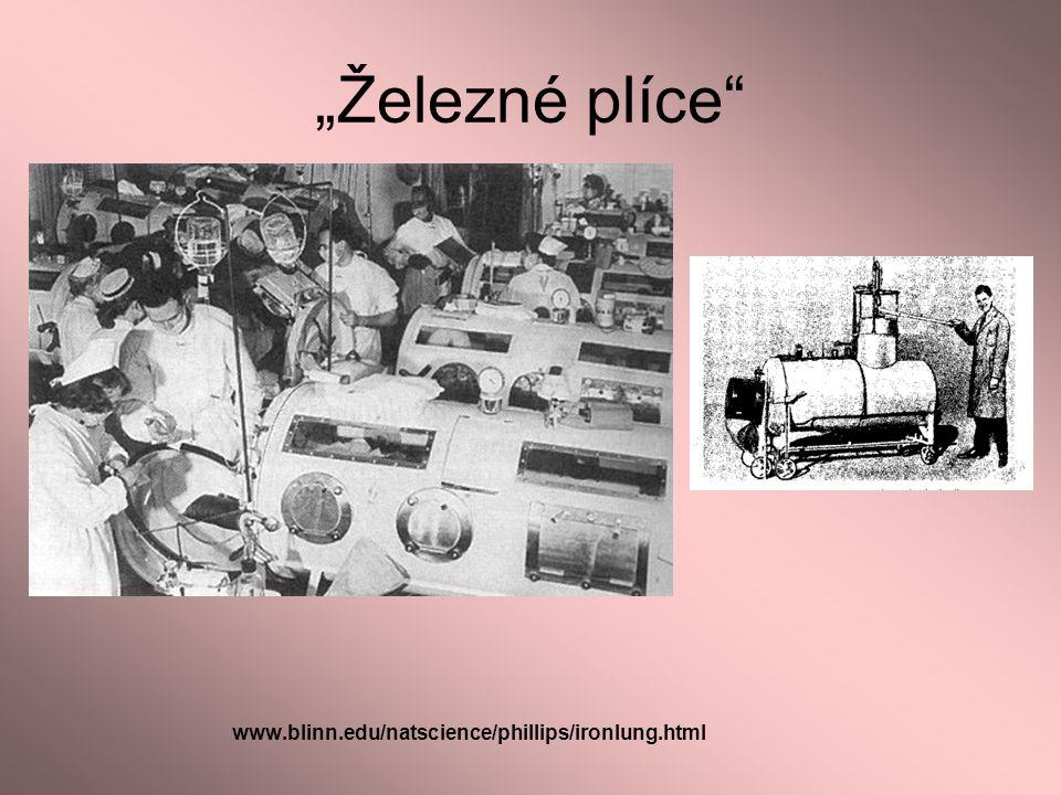 """""""Železné plíce www.blinn.edu/natscience/phillips/ironlung.html"""