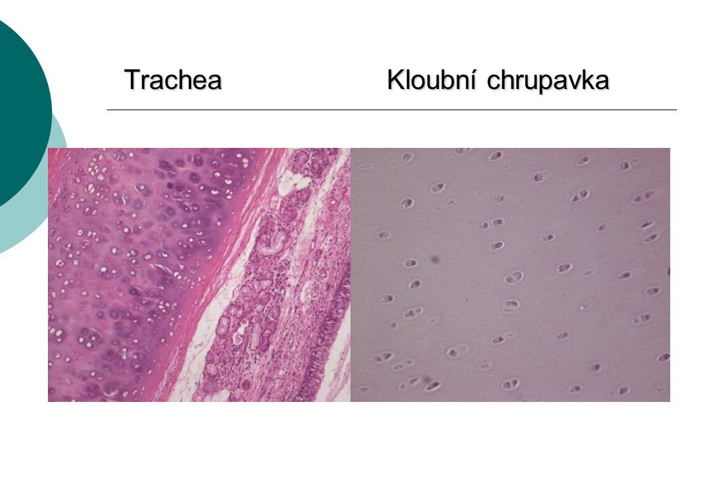 Trachea Kloubní chrupavka