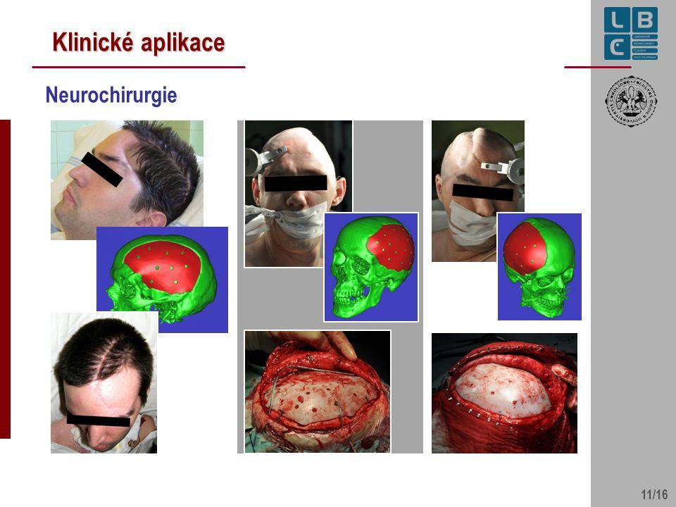 Klinické aplikace Neurochirurgie 11