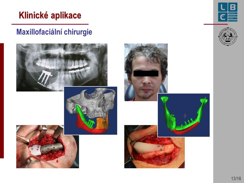 Klinické aplikace Maxillofaciální chirurgie 13