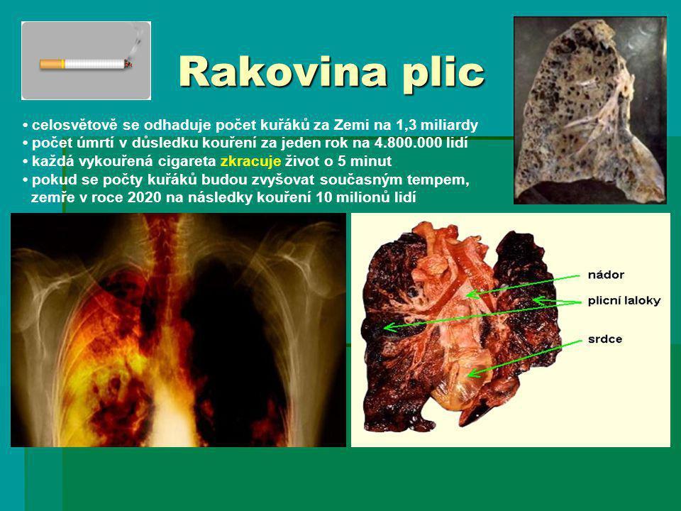 Rakovina plic • celosvětově se odhaduje počet kuřáků za Zemi na 1,3 miliardy. • počet úmrtí v důsledku kouření za jeden rok na 4.800.000 lidí.