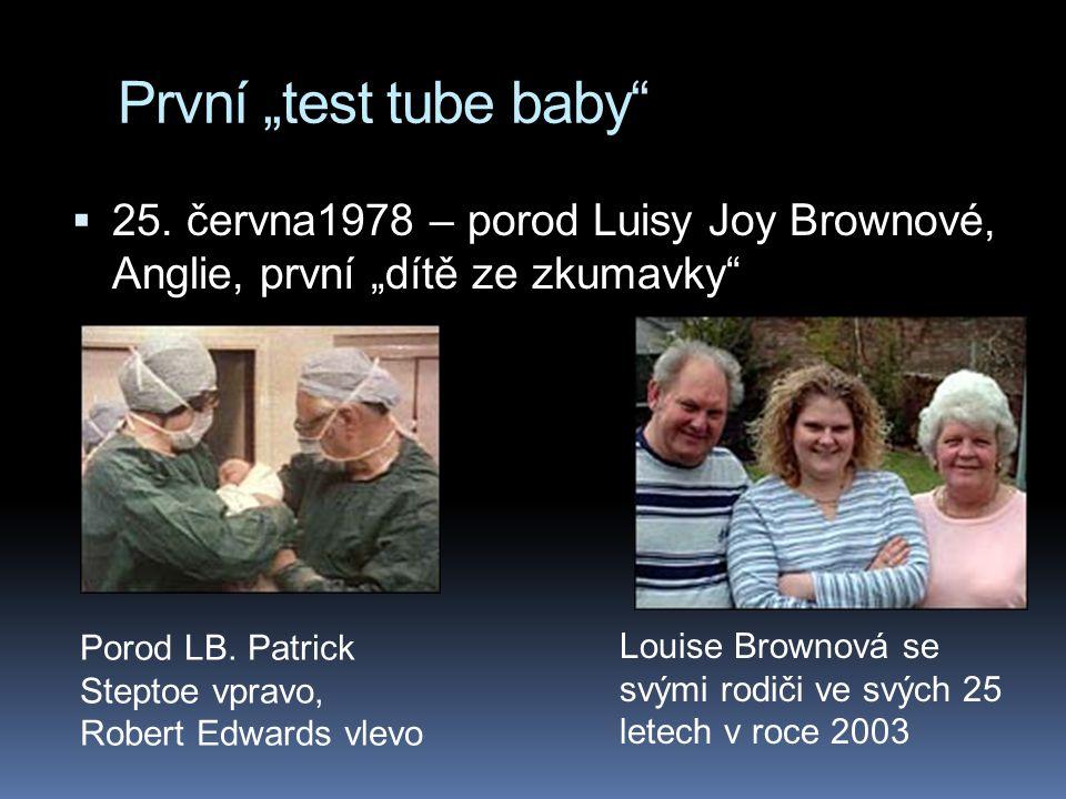 """První """"test tube baby 25. června1978 – porod Luisy Joy Brownové, Anglie, první """"dítě ze zkumavky"""