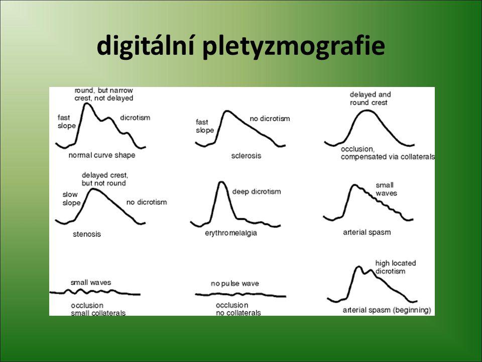 digitální pletyzmografie