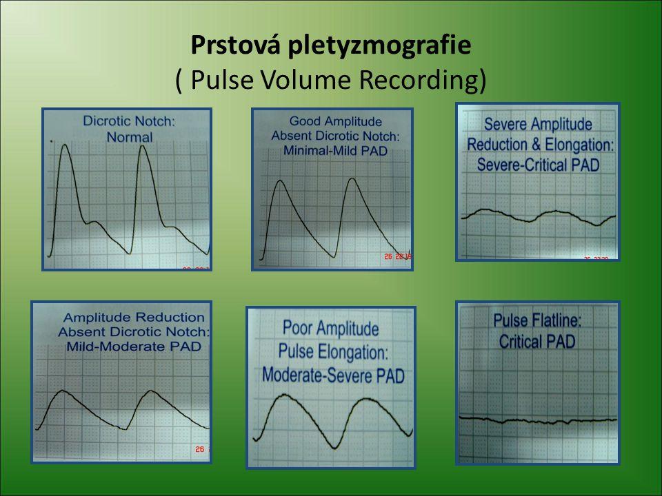 Prstová pletyzmografie ( Pulse Volume Recording)