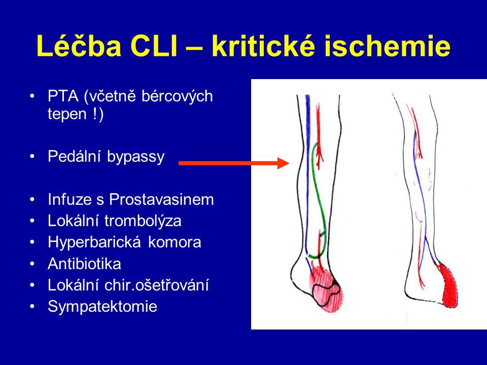Léčba CLI – kritické ischemie