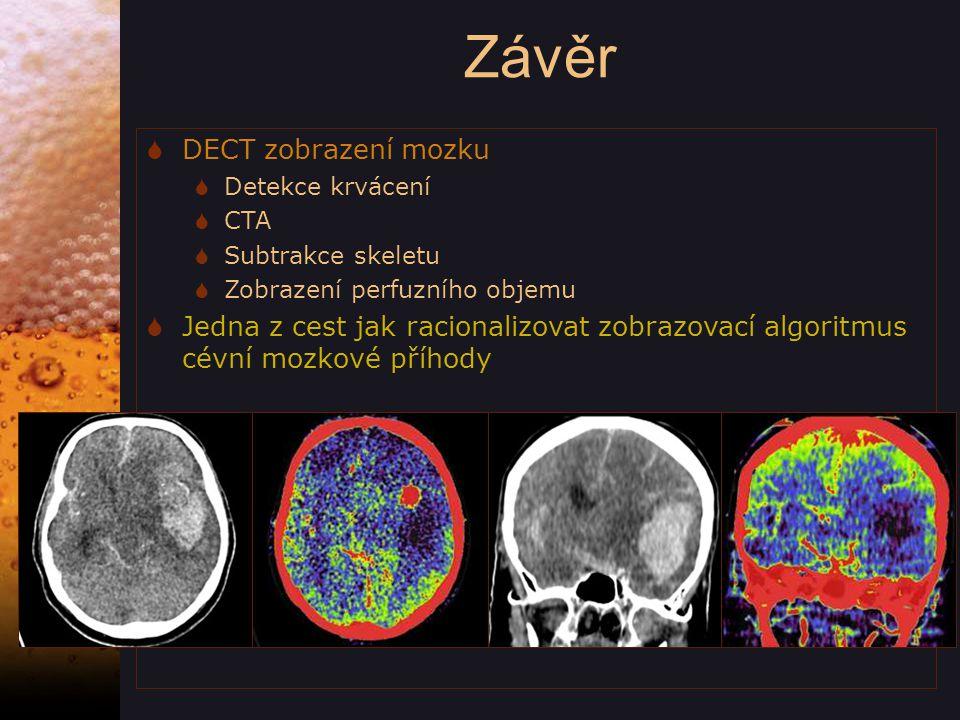 Závěr DECT zobrazení mozku