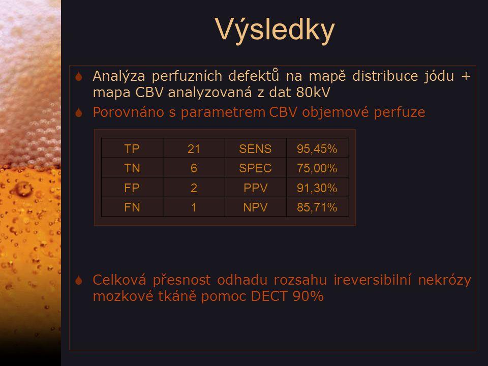 Výsledky Analýza perfuzních defektů na mapě distribuce jódu + mapa CBV analyzovaná z dat 80kV. Porovnáno s parametrem CBV objemové perfuze.