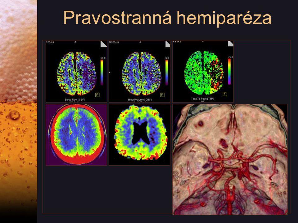 Pravostranná hemiparéza
