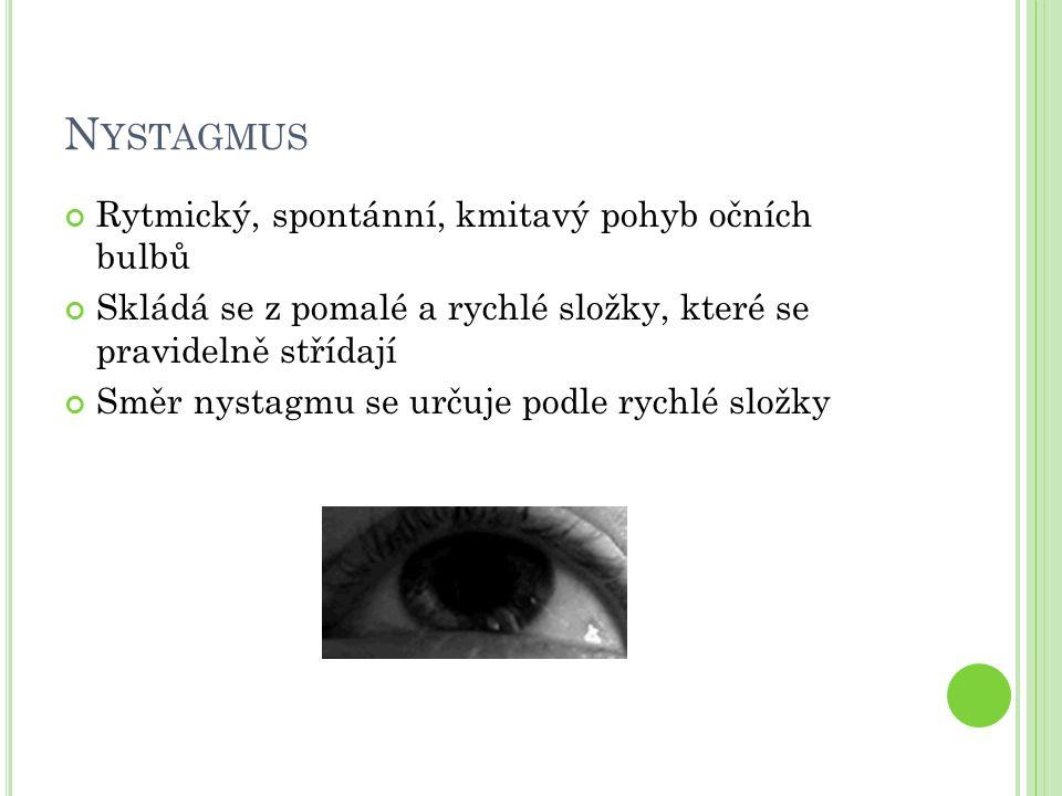Nystagmus Rytmický, spontánní, kmitavý pohyb očních bulbů