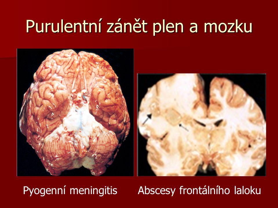 Purulentní zánět plen a mozku