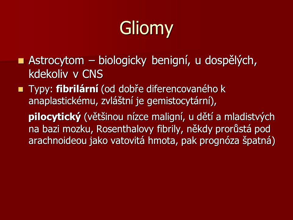 Gliomy Astrocytom – biologicky benigní, u dospělých, kdekoliv v CNS