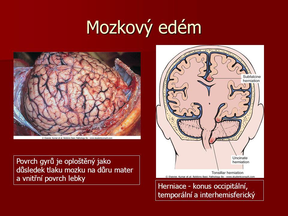 Mozkový edém Povrch gyrů je oploštěný jako důsledek tlaku mozku na důru mater a vnitřní povrch lebky.