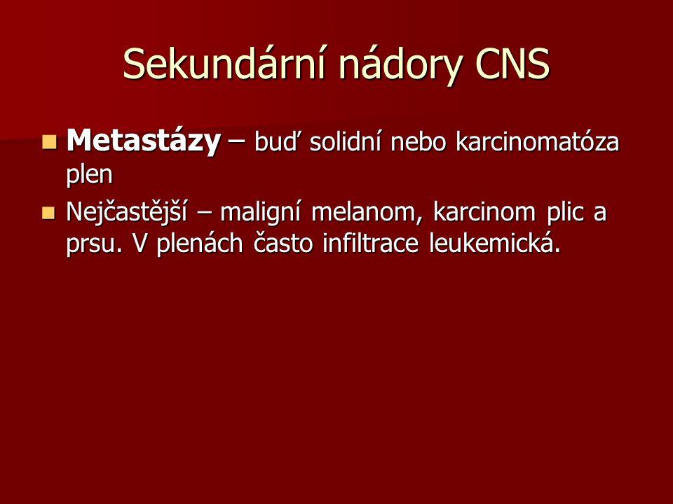Sekundární nádory CNS Metastázy – buď solidní nebo karcinomatóza plen