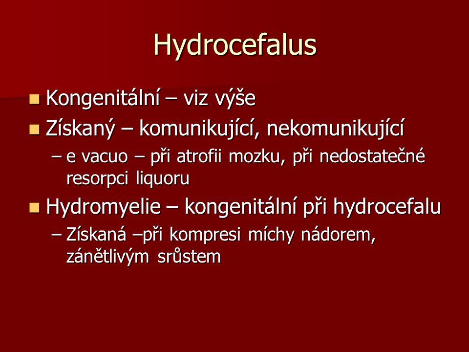 Hydrocefalus Kongenitální – viz výše