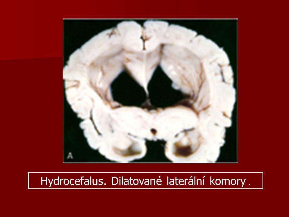 Hydrocefalus. Dilatované laterální komory .