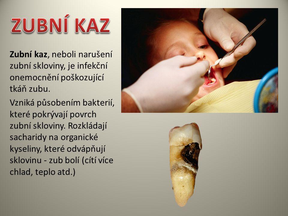ZUBNÍ KAZ Zubní kaz, neboli narušení zubní skloviny, je infekční onemocnění poškozující tkáň zubu.