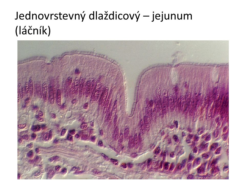 Jednovrstevný dlaždicový – jejunum (láčník)
