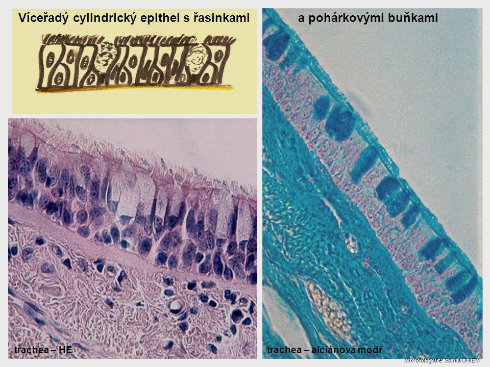 Víceřadý cylindrický epithel s řasinkami a pohárkovými buňkami