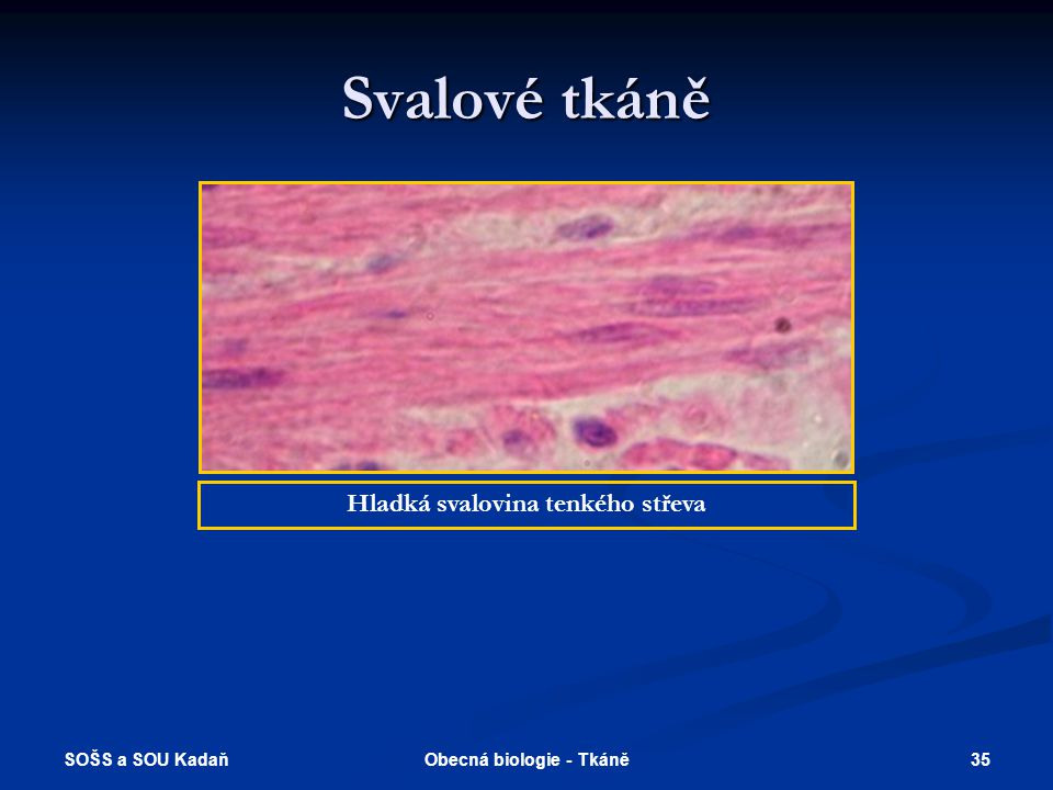 Hladká svalovina tenkého střeva Obecná biologie - Tkáně