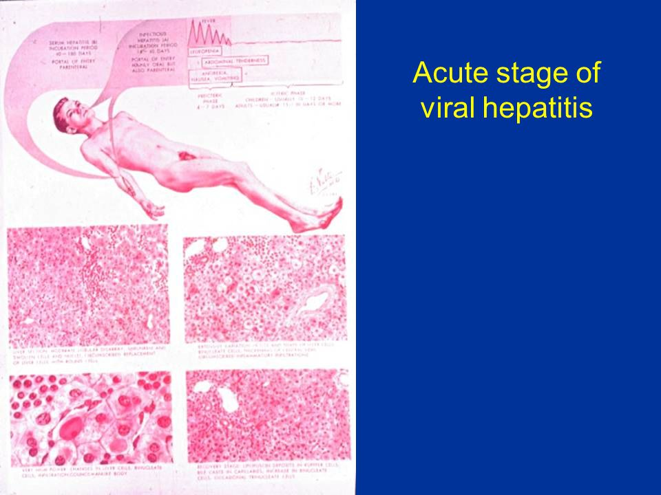 Acute stage of viral hepatitis