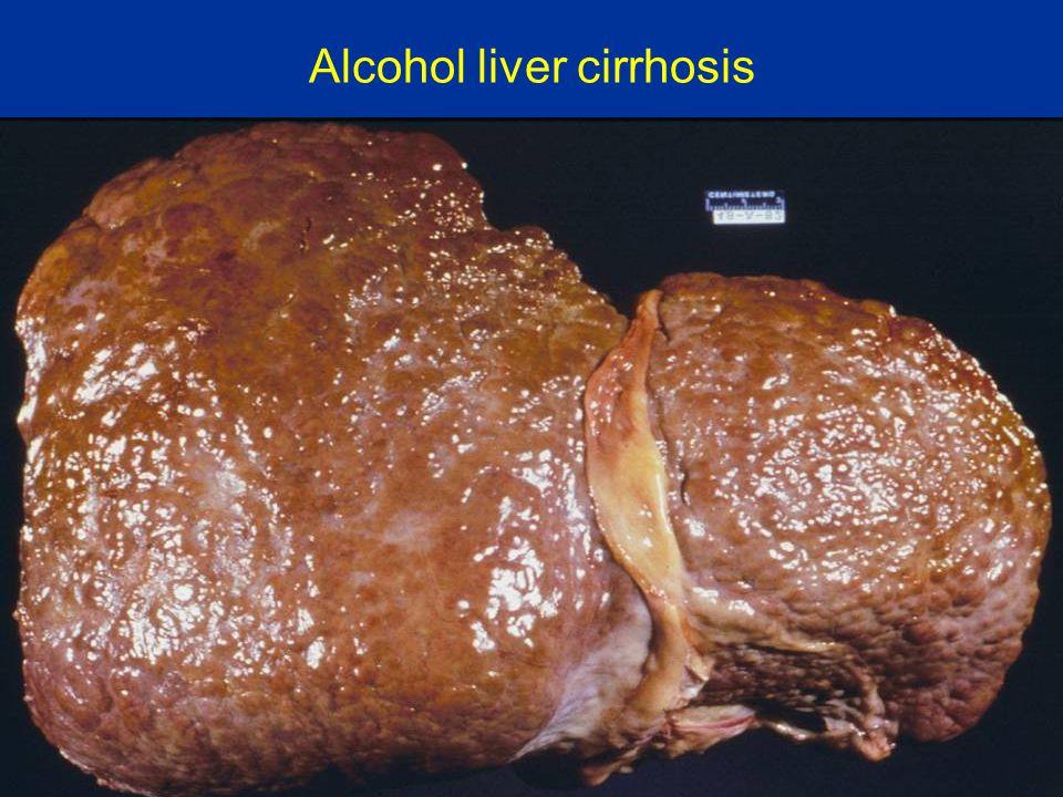 Alcohol liver cirrhosis