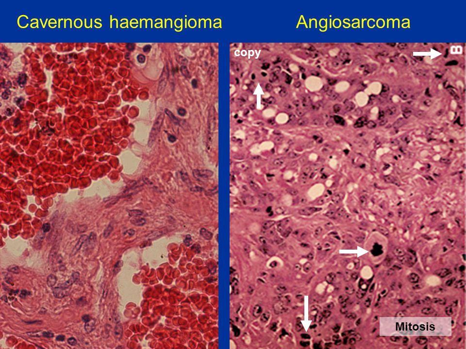 Cavernous haemangioma Angiosarcoma