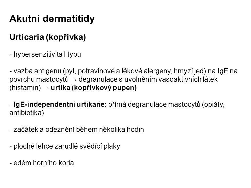 Akutní dermatitidy Urticaria (kopřivka) - hypersenzitivita I typu