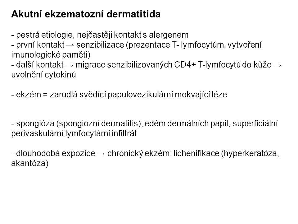 Akutní ekzematozní dermatitida