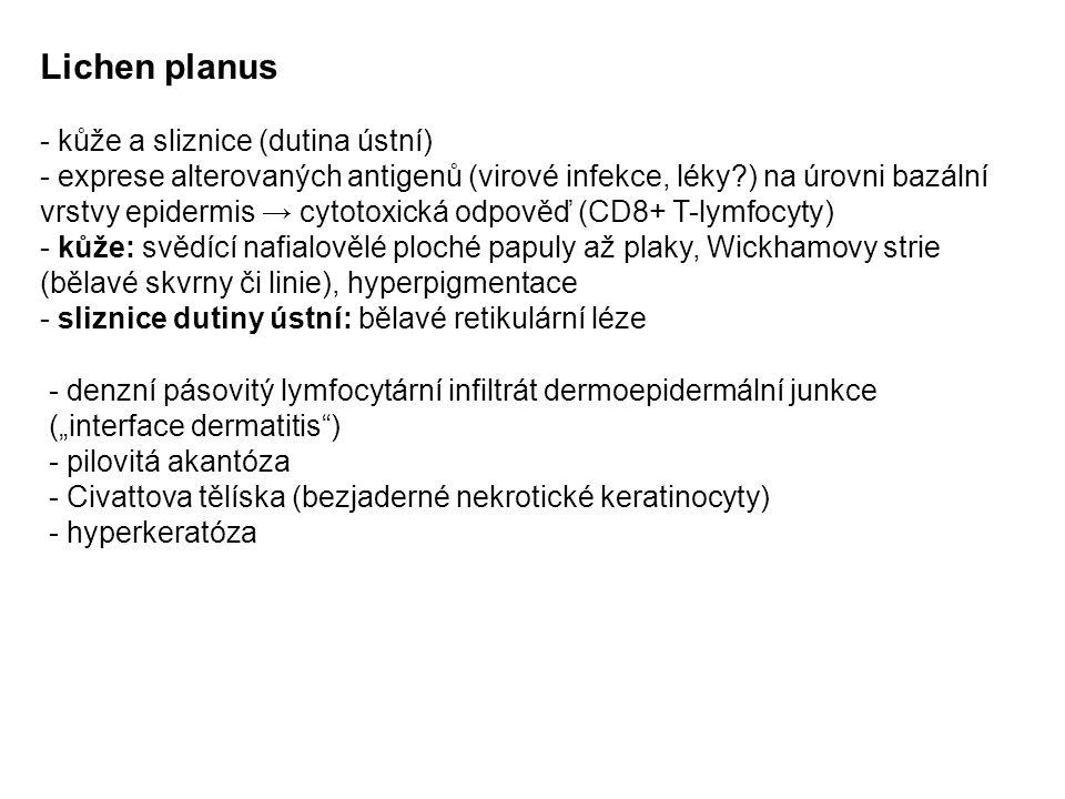 Lichen planus - kůže a sliznice (dutina ústní)