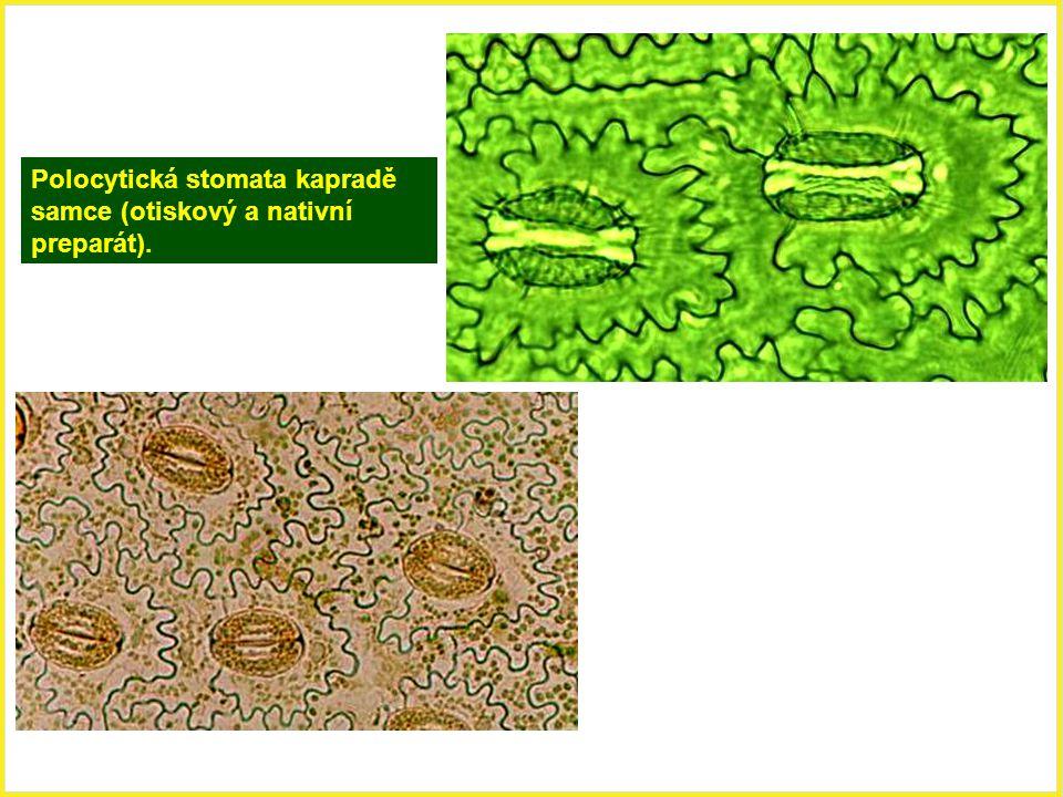 Polocytická stomata kapradě samce (otiskový a nativní preparát).