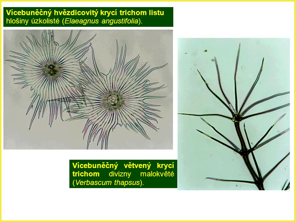 Vícebuněčný hvězdicovitý krycí trichom listu hlošiny úzkolisté (Elaeagnus angustifolia).