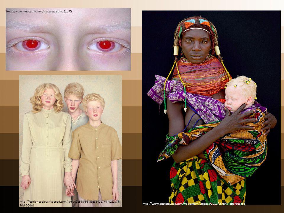 http://www.mrcophth.com/iriscases/albino11.JPG http://fashioncopious.typepad.com/.a/6a00e54ef9645388340177444222d7970d-700wi.