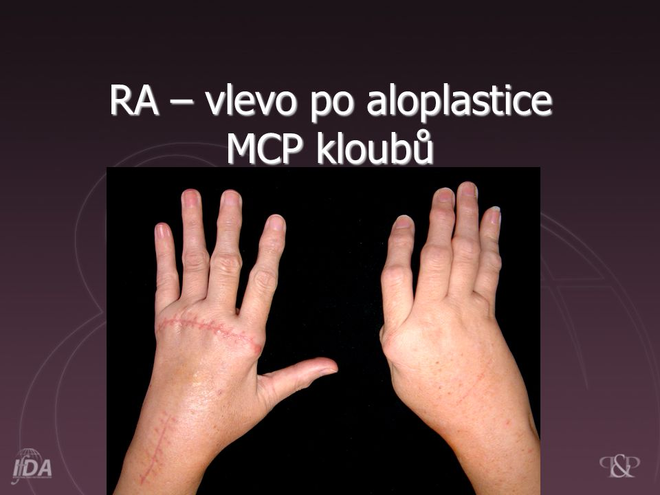 RA – vlevo po aloplastice MCP kloubů