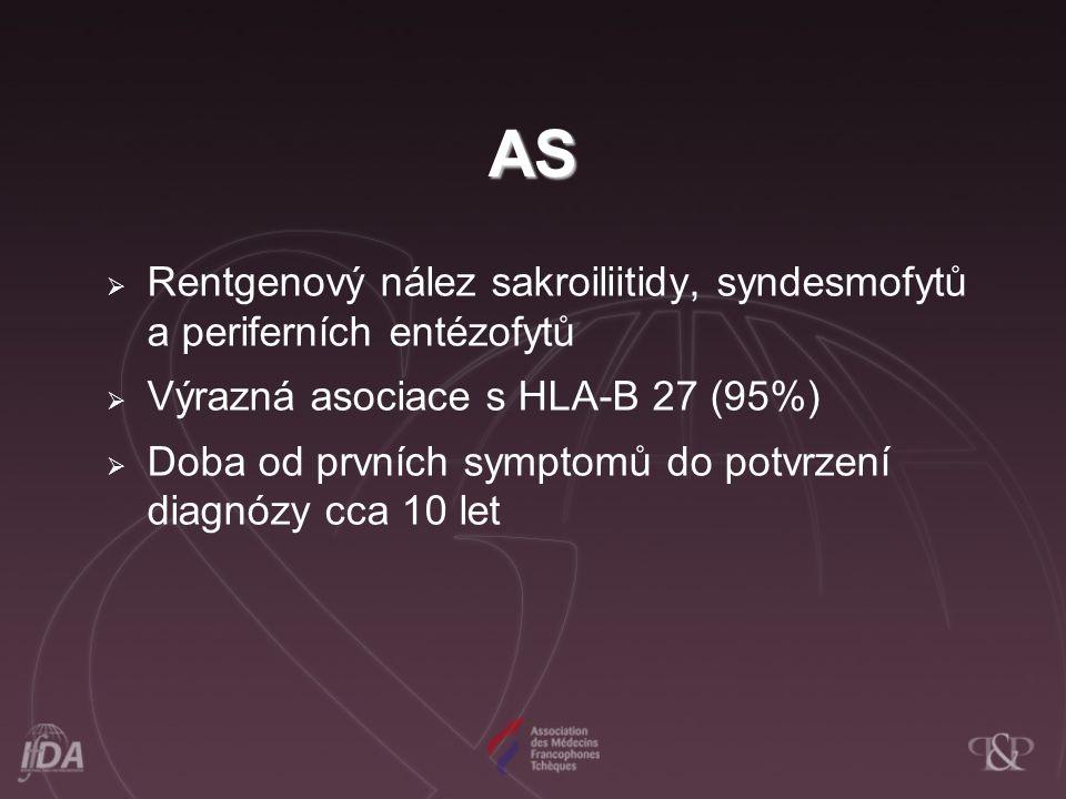 AS Rentgenový nález sakroiliitidy, syndesmofytů a periferních entézofytů. Výrazná asociace s HLA-B 27 (95%)