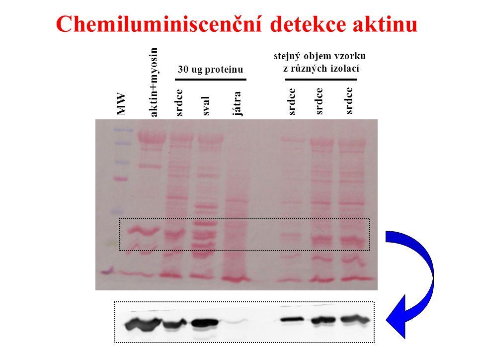Chemiluminiscenční detekce aktinu