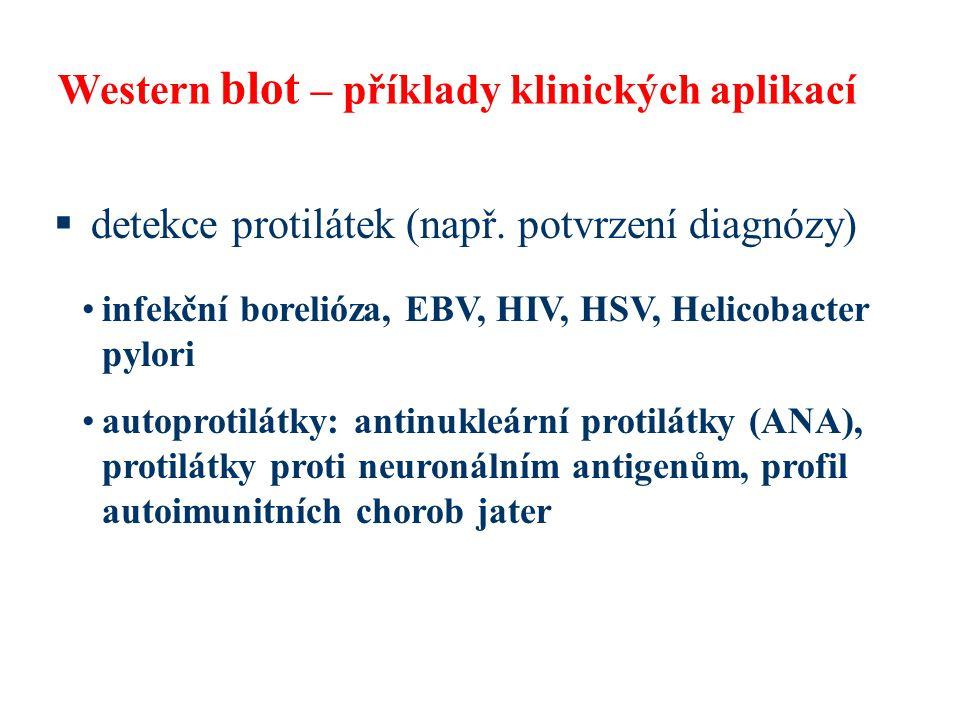Western blot – příklady klinických aplikací