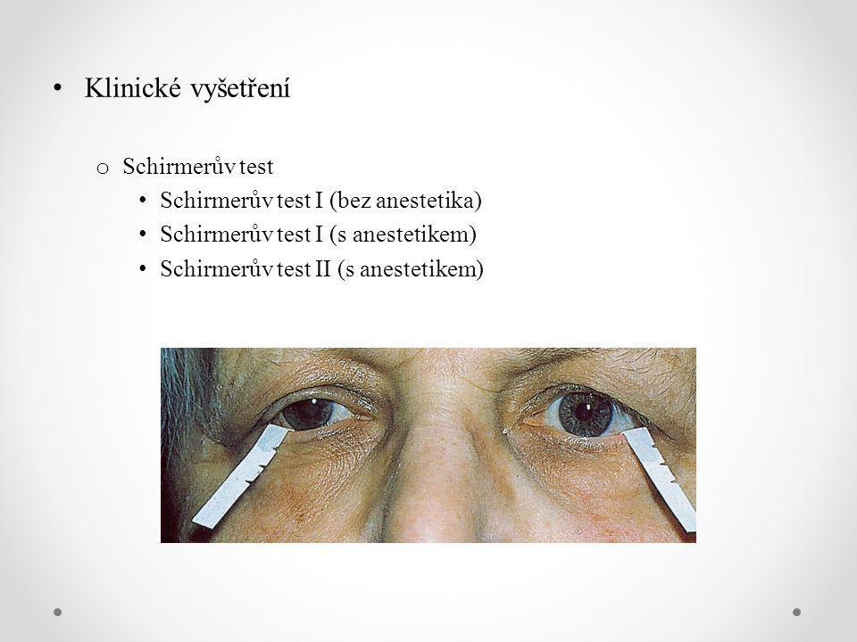 Klinické vyšetření Schirmerův test Schirmerův test I (bez anestetika)