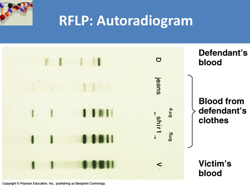 RFLP: Autoradiogram
