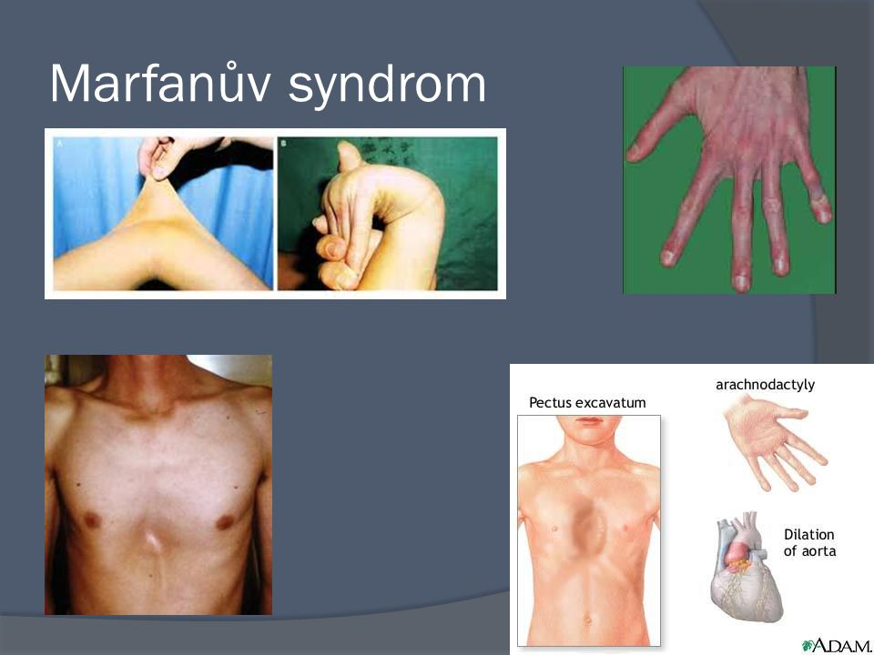 Marfanův syndrom