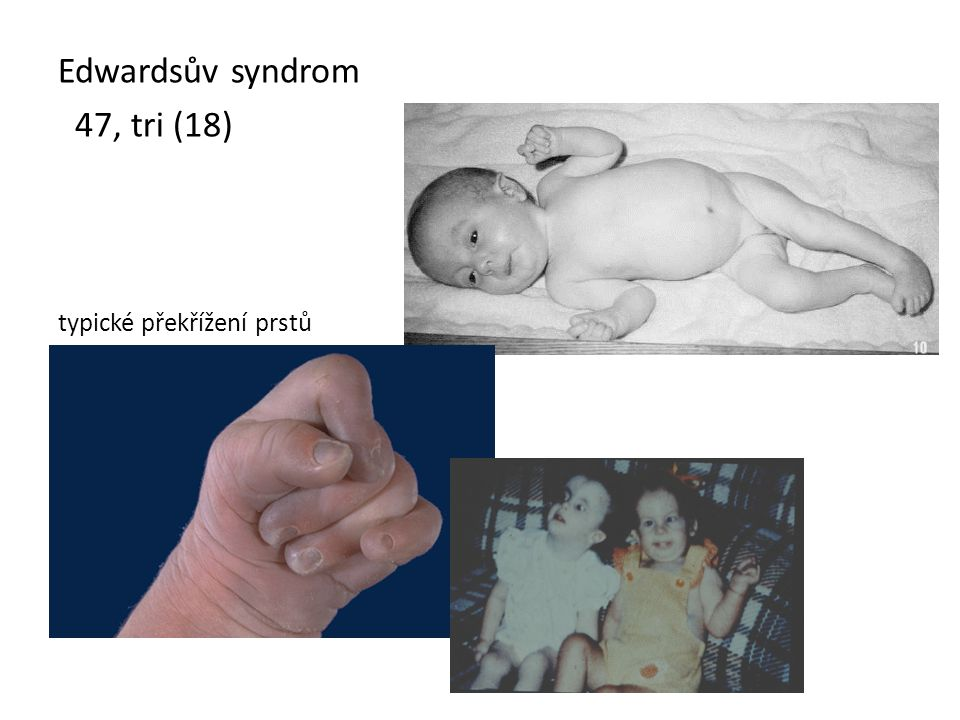 Edwardsův syndrom 47, tri (18) typické překřížení prstů
